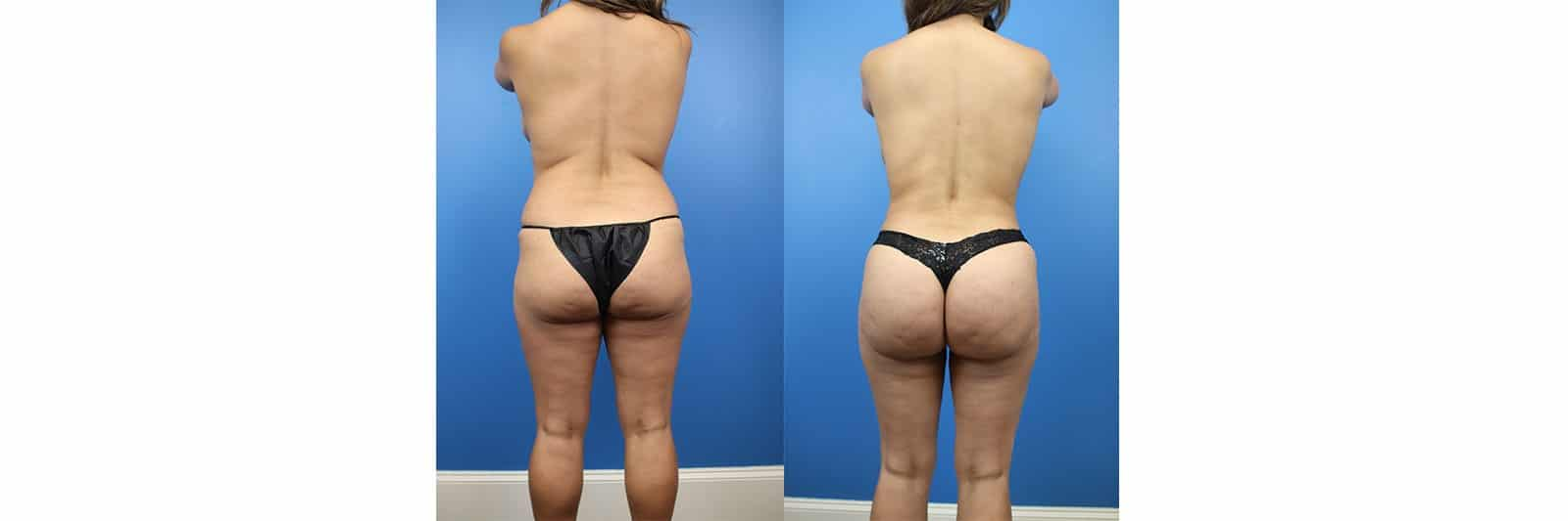 Buttock Aug With Fat Patient 1 6